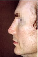2 months post-op after removal of the rib graft and implantation of a Medpor Nasal Shell in the nose