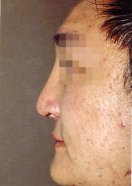 1 month post-op after implantation of a Medpor Nasal Shell in the nasal bridge and cartilage grafts in the nose tip