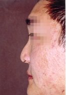 Profile photo of an Asian patient who requests a larger nose